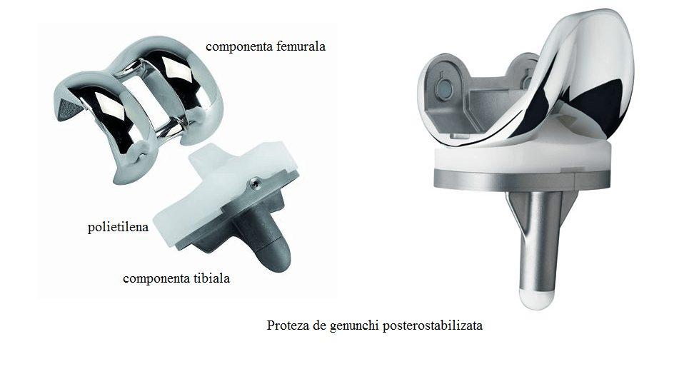 Artroplastie Genunchi